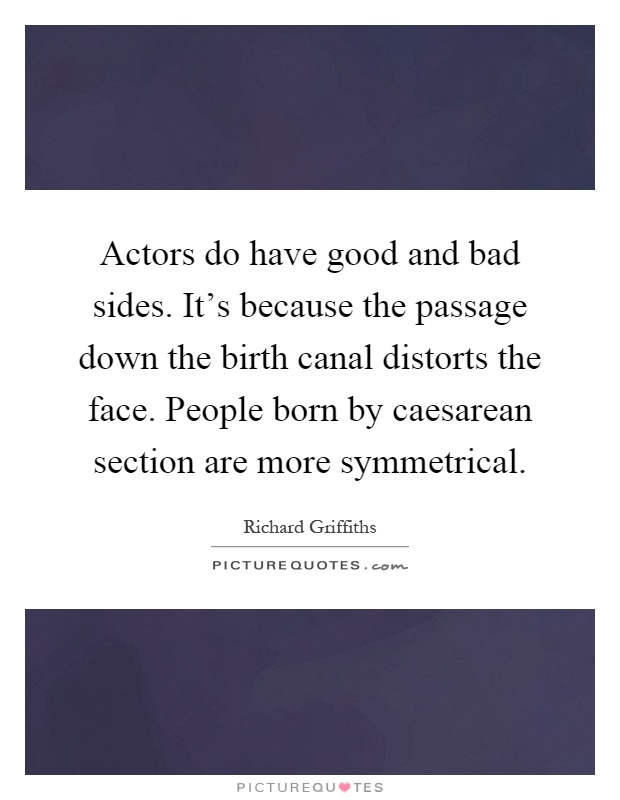Actors do have good and bad sides. It's because the passage down the birth canal distorts the face. People born by caesarean section are more symmetrical Picture Quote #1