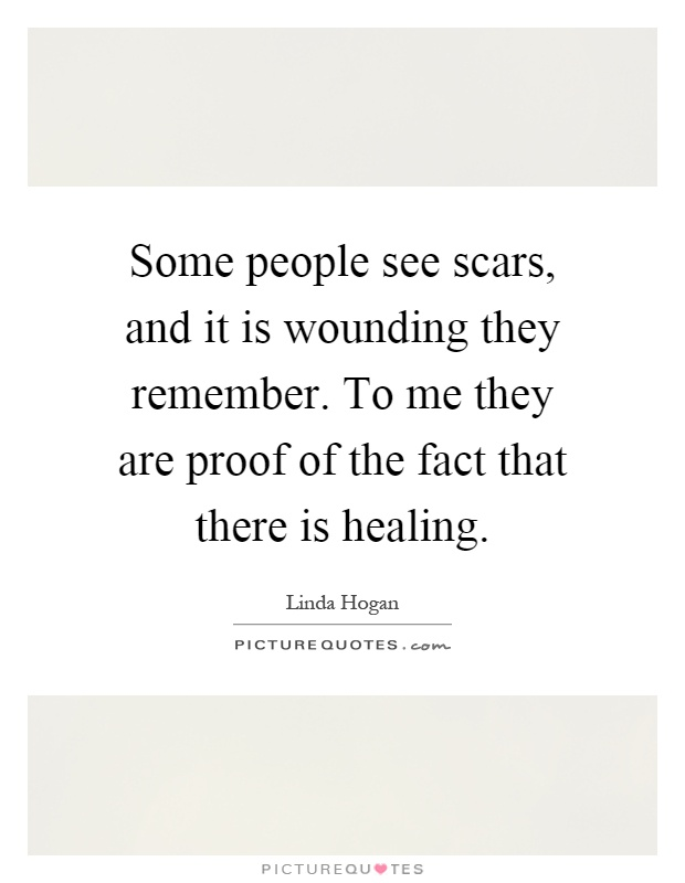 Some people see scars, and it is wounding they remember. To me they are proof of the fact that there is healing Picture Quote #1