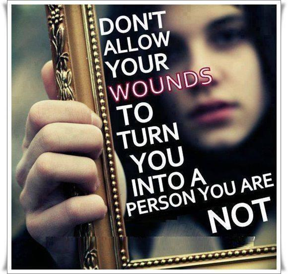 Don't allow your wounds to turn you into a person you are not Picture Quote #1