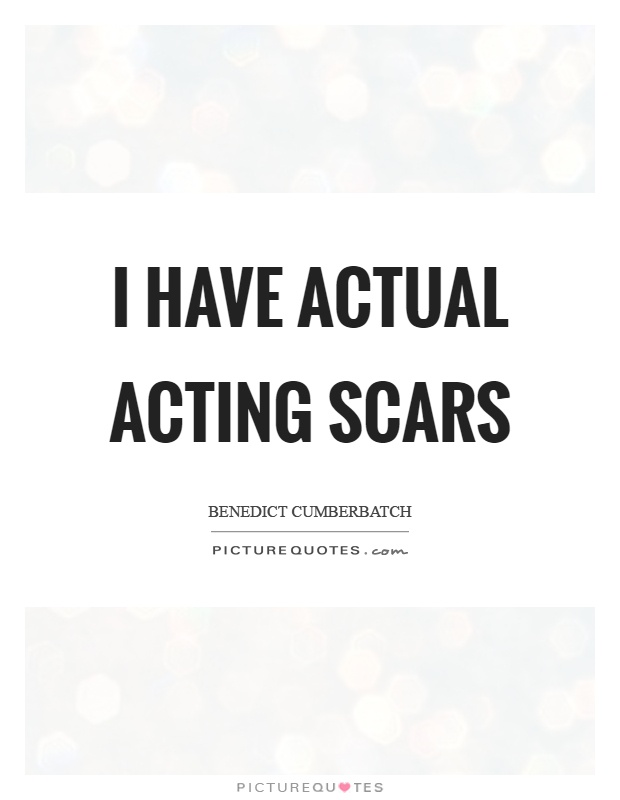 I have actual acting scars Picture Quote #1