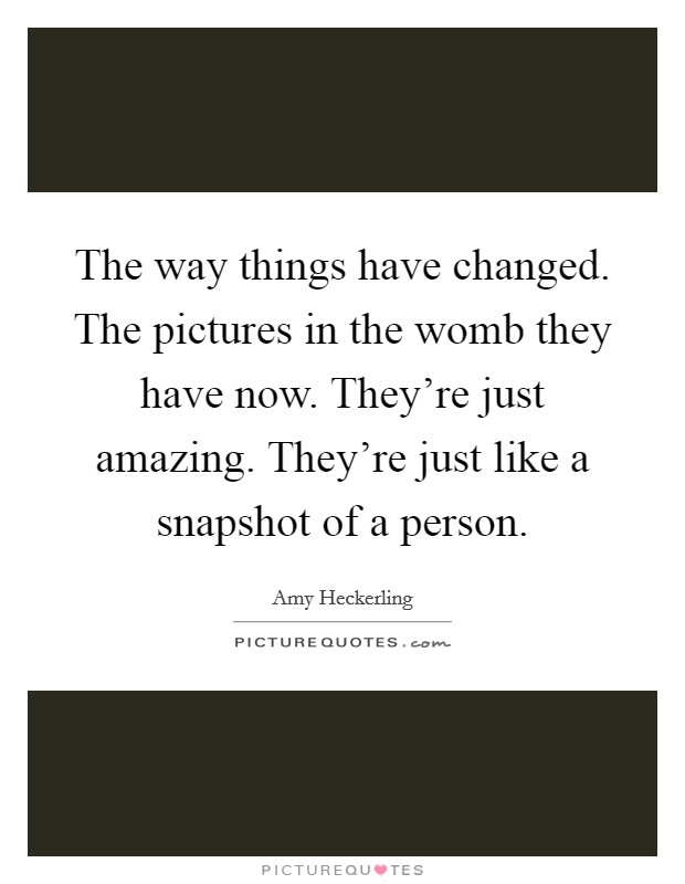 The way things have changed. The pictures in the womb they have now. They're just amazing. They're just like a snapshot of a person Picture Quote #1