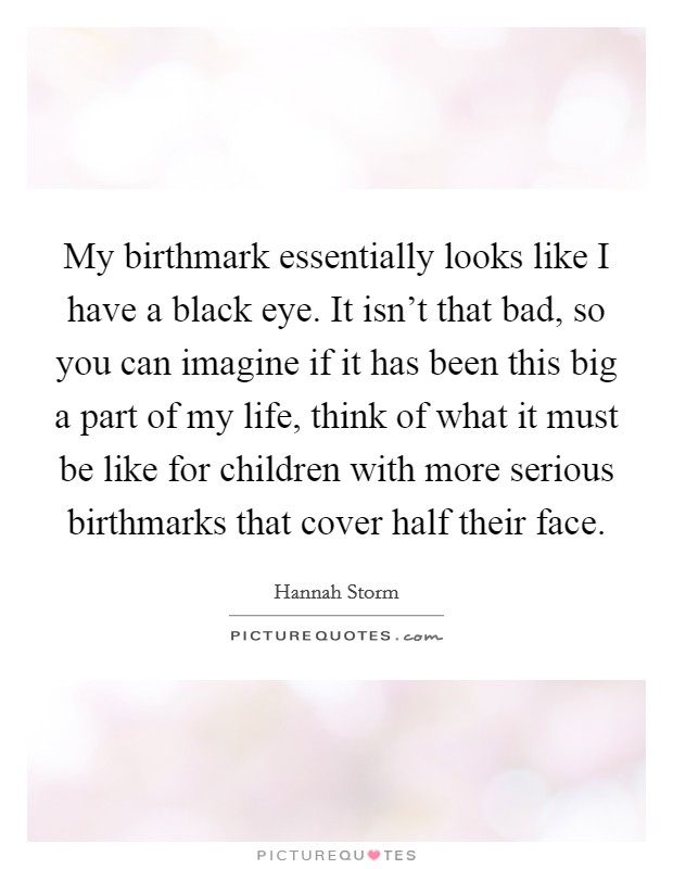 My birthmark essentially looks like I have a black eye. It isn't that bad, so you can imagine if it has been this big a part of my life, think of what it must be like for children with more serious birthmarks that cover half their face Picture Quote #1